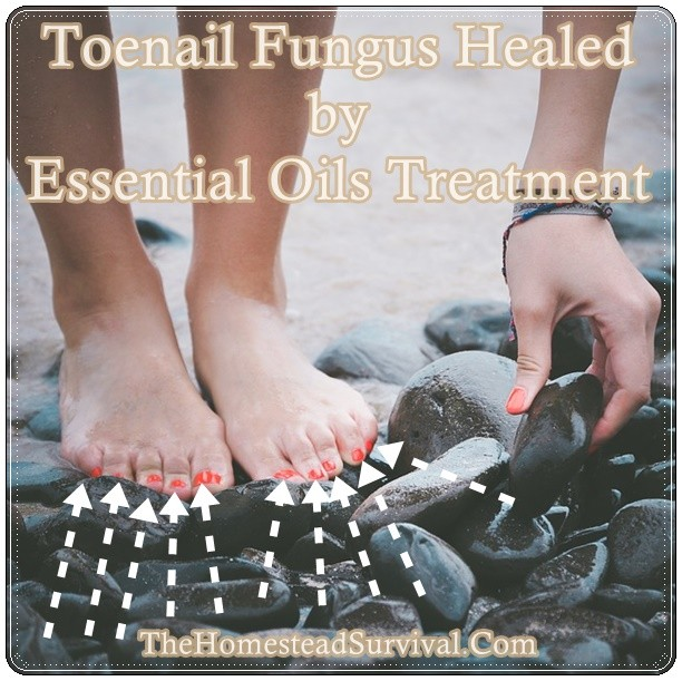 Toenail Fungus Healed by Essential Oils Treatment | The Homestead ...