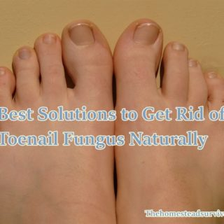 Best Solutions to Get Rid of Toenail Fungus Naturally