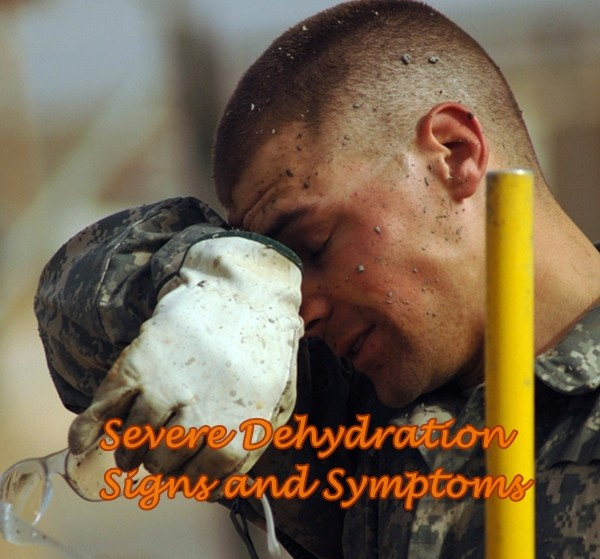Severe Dehydration Signs and Symptoms | The Homestead Survival